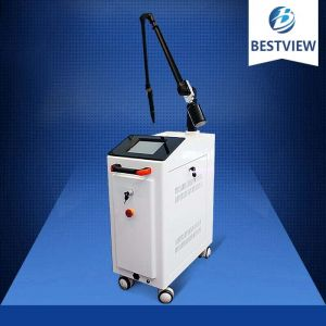 Q-switched Nd Yag Tattoo Removal Laser BW-191