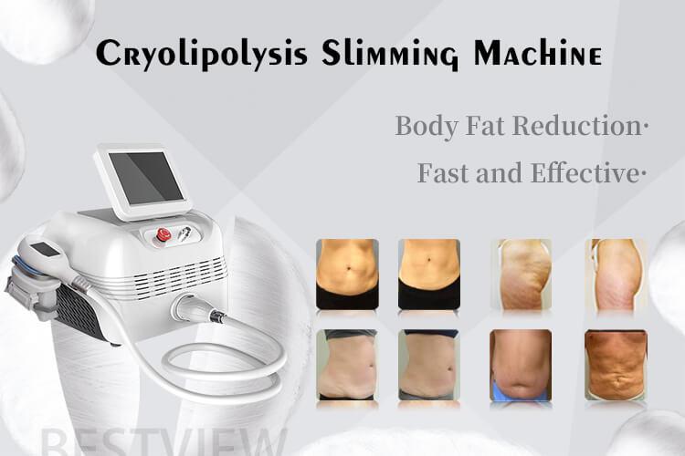 Body Slimming Cyolipolisis Machine