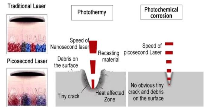 picosure laser machine