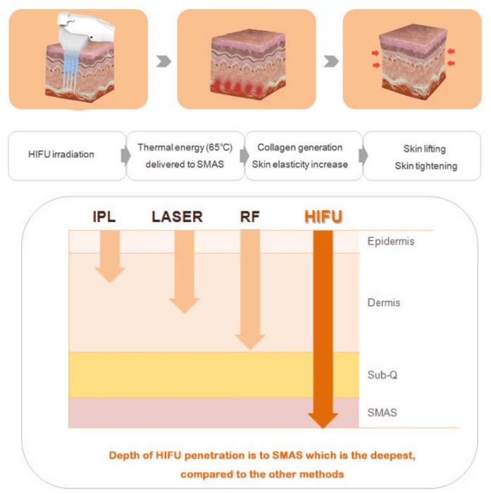 4D HIFU skin rejuvenation machine