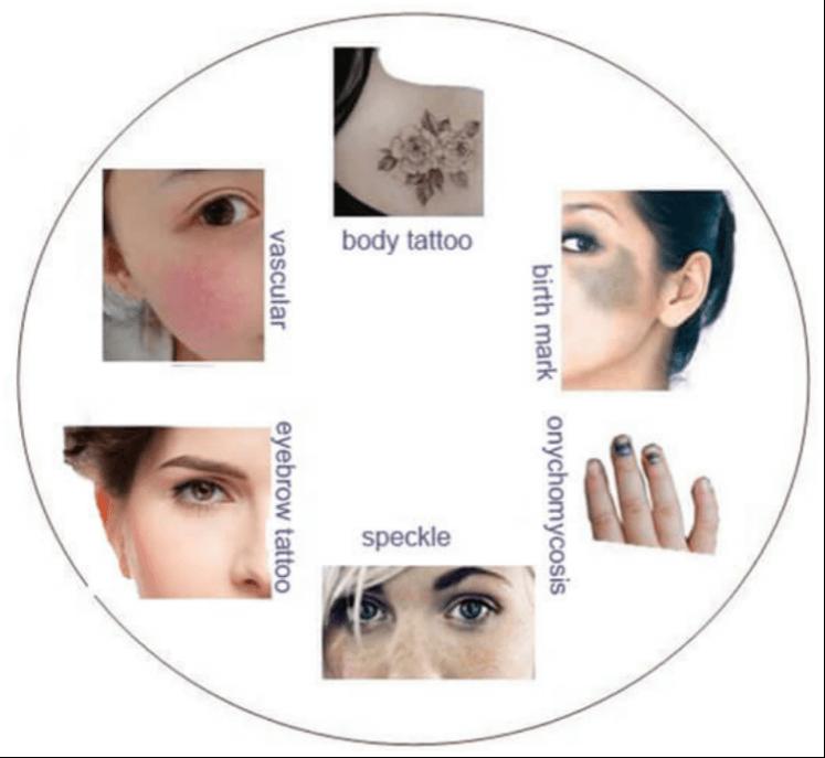 laser tattoo removal machine