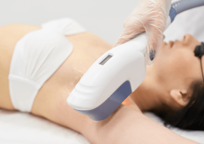 opt laser hair removal